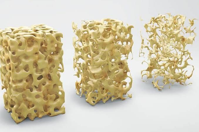 PILATES no tratamento para  OSTEOPOROSE