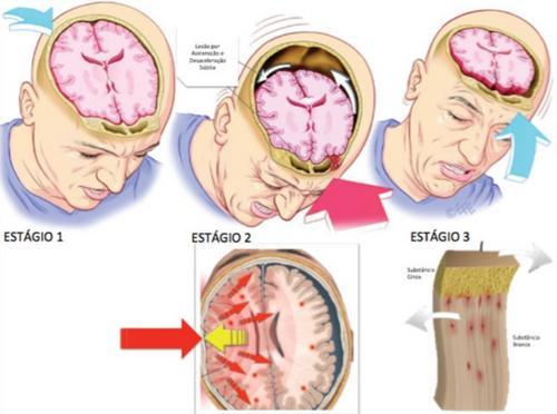 Concussão cerebral: novas classificações e conhecimento fisiopatológico